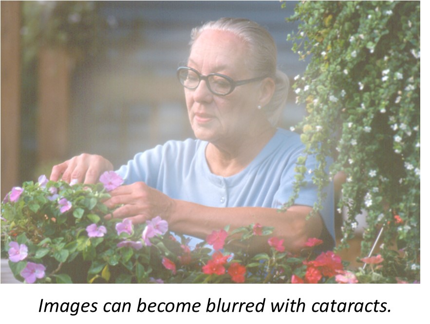 Blurred image with cataracts